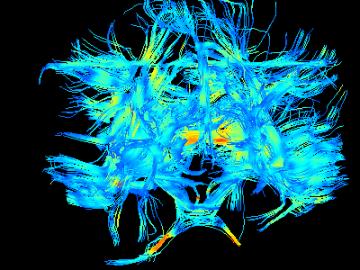 Diffusion Tensor Imaging picture from Etta's MRI scan.